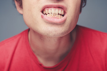 Young man with cold sore and plaque on his teeth