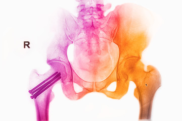 colorful pelvis  x-rays image show fracture head of femur insert