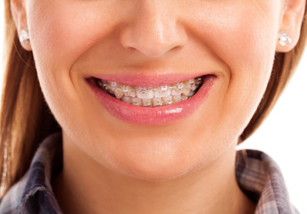 Mouth care teeth with braces