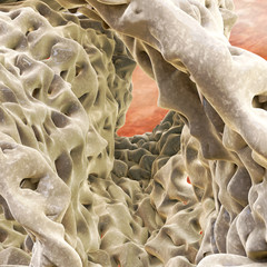 Osteoporose - Macro - 3D Render