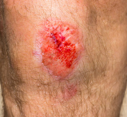 Wound on a knee