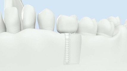 with Alpha / High quality 3D animation showing of dental implant