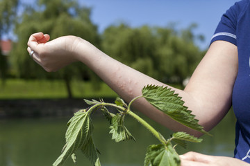 Acute allergic reaction after touching stinging nettle leaves
