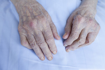 Old wrinkle hands of 93 years old lady