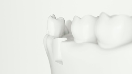 Dental implant  animation with white,black a. alpha
