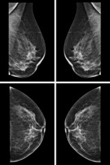 Lateral mammogram of female breast