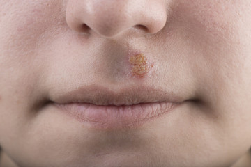 Closeup of a common cold sore virus herpes simplex