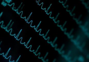 Shimmering ECG monitor. Medical background
