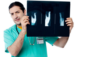 Male doctor observing x ray image