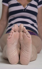 Soles of a womans feet