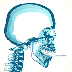 Empty skull, for placing ideas in the head.