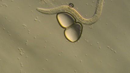 Caenorhabditis elegans, a free-living transparent nematode