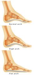 Set of flat foot, high arch.Rheumatoid Arthritis In Arch Of Foot