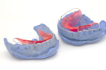 dental gypsum models and dental brace (Retainer)