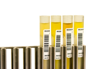 Urine Medical analysis