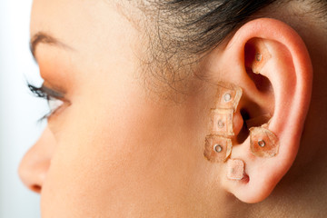 Auriculotherapy on female ear.