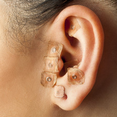 Auriculotherapy on human ear.