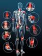 Leinwandbild Motiv Gelenkentzündungen bei Arthrose
