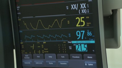 Heart Monitor ECG coronary angiography