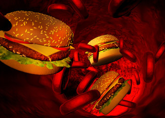 Cholesterol blocked artery, concept for diet and obesity