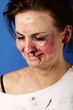 Woman after an injury