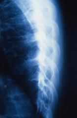 X-ray von menschlichen Rippen, close-up Röntgenaufnahme