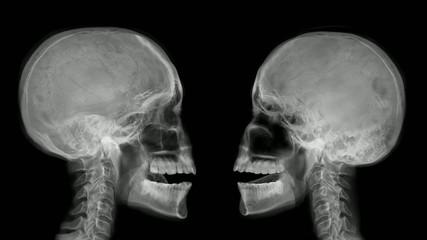 Two arguing skulls.