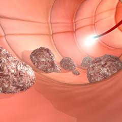 Colonscopia esame colon apparato digerente