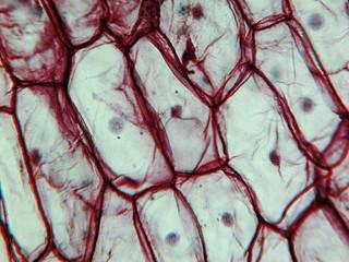 Onion epidermus micrograph