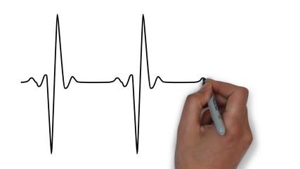 Herz Herzfrequenz Herzschlag Frequenz Medizin EKG