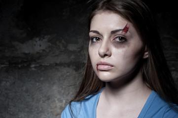 Beaten up woman.