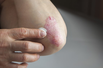 Psoriasis on elbow. Medical treatment