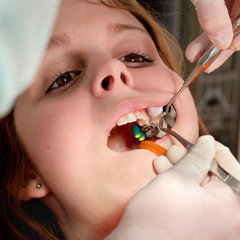 Dental procedure, drilling and filling tooth with tools, pincers