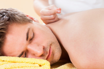 Relaxed Man Receiving Acupuncture Treatment In Spa