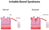 Irritable Bowel Syndrome poster