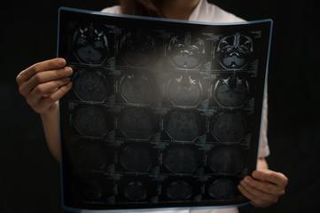 Doctor viewing mri x-ray of brain