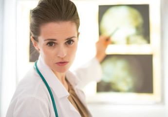 Portrait of medical doctor woman pointing tomography on lightbox