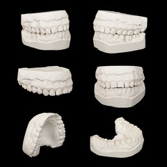 Set of Dental casting gypsum models plaster cast