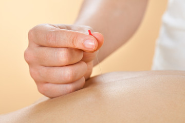Therapist Giving Acupuncture Treatment To Woman In Spa