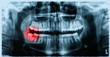 Panoramic x-ray image of teeth and mouth with wisdom teeth - 65927766