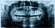Panoramic dental x-ray  - 65927767