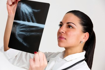 Female doctor, looking X-Ray