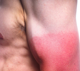 Sunburn on male biceps