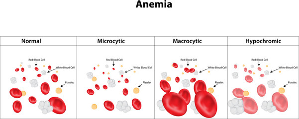Microcytic, Macrocytic and Hypochromic Anemia