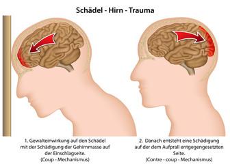 Schädel Hirn Trauma, Coup-contre Mechanismus