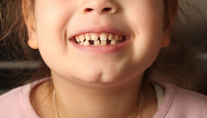 smiling child with baby teeth dropped out. Dental girls bite
