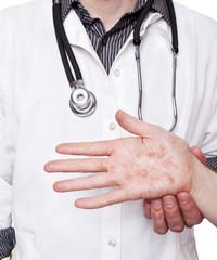 Dermatologist examining hand with severe eczema