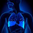 Leinwandbild Motiv Pulmonary Edema - Water in Lungs