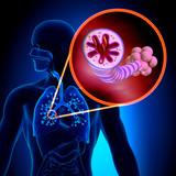 Asthma - Chronic Inflammatory Disease poster