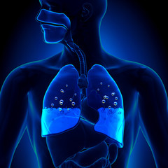 Pulmonary Edema - Water in Lungs